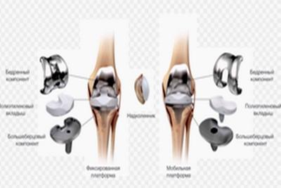 Эндопротезирование тазобедренного сустава в бел хрустит коленный сустав как лечить