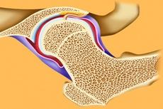 Белорусские технологии лечения патологии тазобедренного сустава