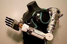 Современные технологии протезирования: как ИТ помогает людям жить
