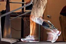 Homo bionics - так называют людей с бионическими конечностями