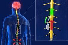 INS2: многофункциональный имплантируемый нейростимулятор