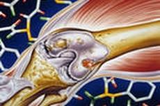 Методика лечения остеоартрита с помощью стволовых клеток