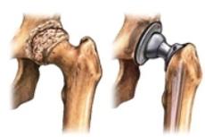 Замена тазобедреного сустава в картинках разрыв мышц плечевого сустава лечение