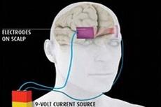 Электростимуляция мозга вернет людей, перенесших удар, к нормальной жизни