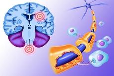 Изобретен простой метод диагностики рассеянного склероза