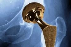 Инновации в протезировании больных артритом тазобедренного сустава