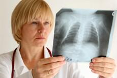 Принудительное лечение туберкулеза — под особым контролем