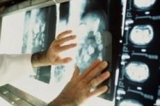 В Минске откроют международную лабораторию по лечению онкозаболеваний